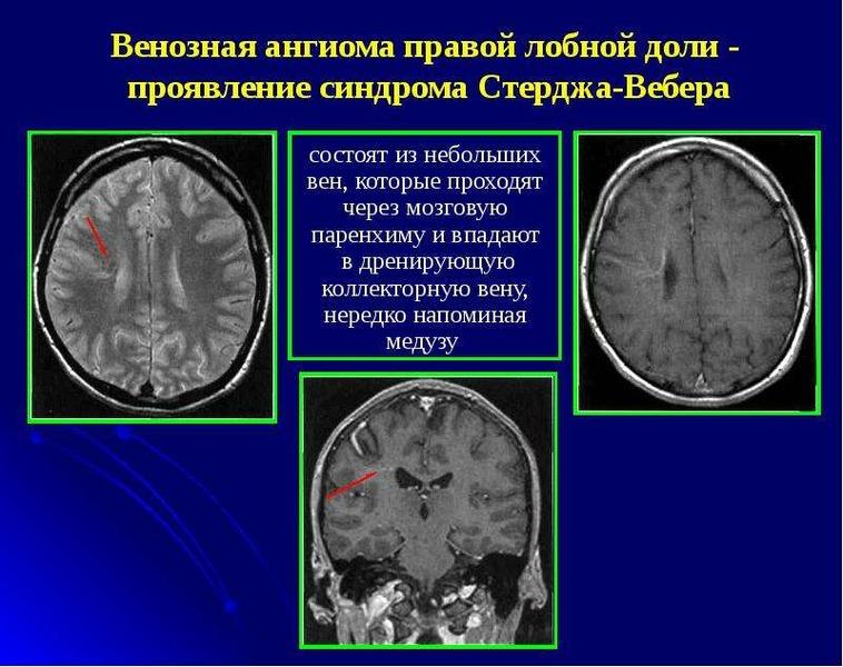 Ангиома сосудистая головного мозга