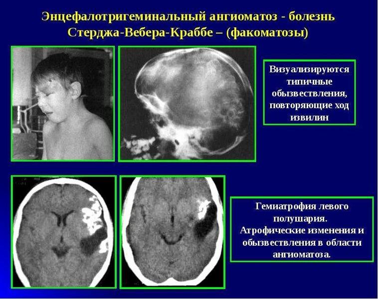 Болезнь рака головного мозга