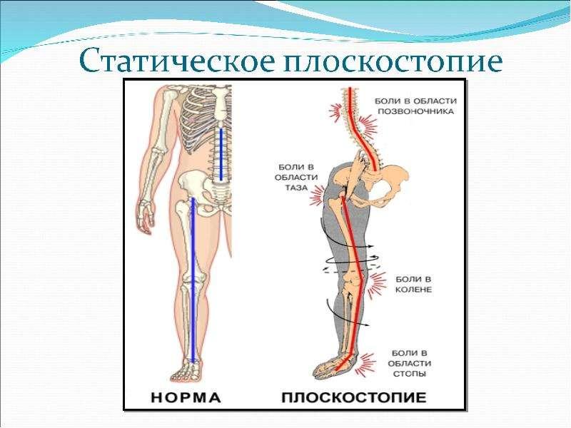 Боль в области холки на спине