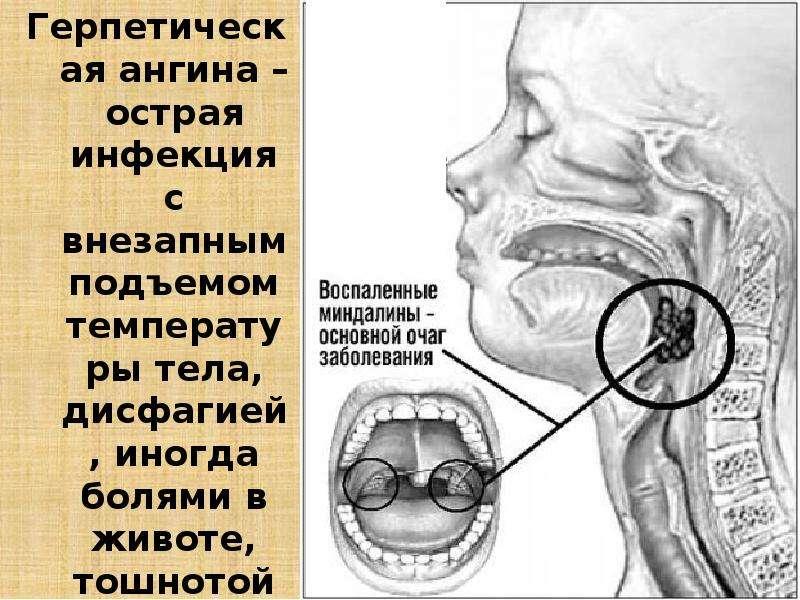 Герпетическая ангина – острая инфекция с внезапным подъемом температуры тела, дисфагией, иногда боля
