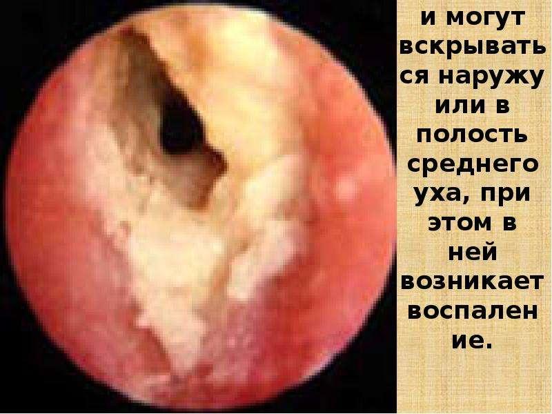 Гнойнички могут вскрываться наружу или в полость среднего уха, при этом в ней возникает воспаление.