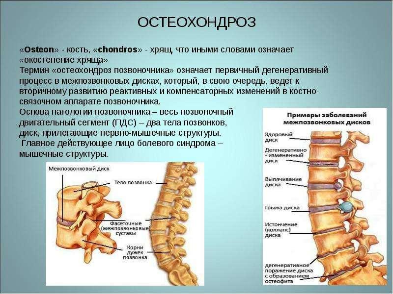 как вылечить остеохондроз шейного и грудного отдела