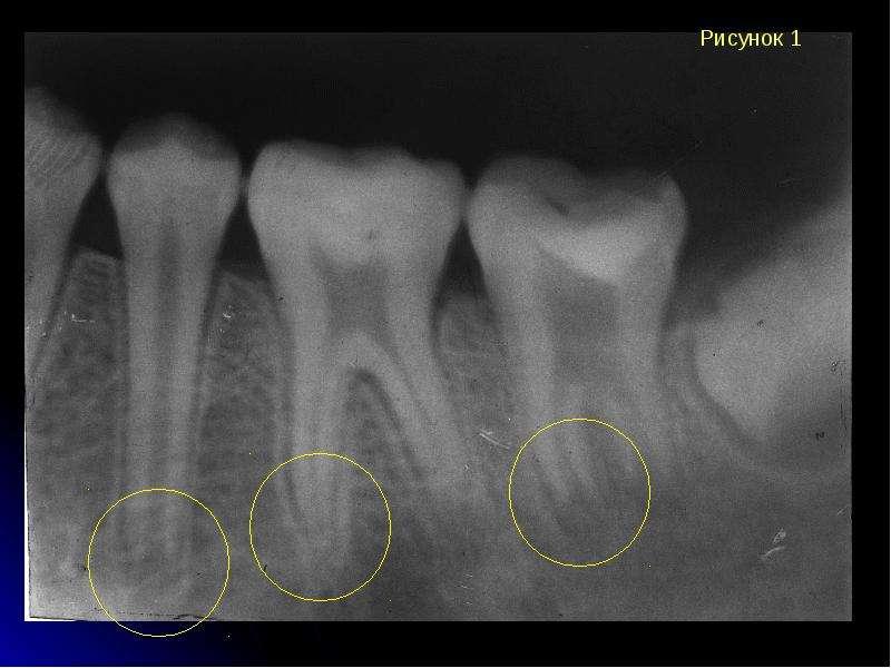 Периодонтит зуба на снимках