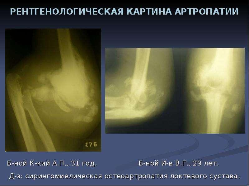 презентации на тему заболевания суставов