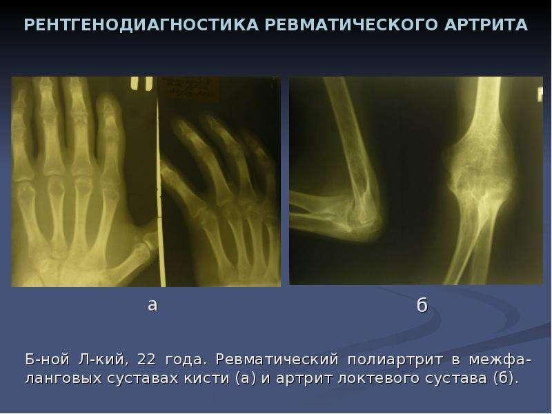 точкой сколько можно прожить с ревматоидным артритом приступа