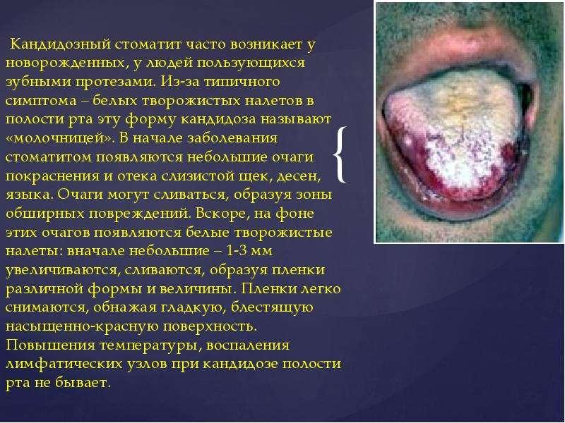 Презентация На Тему Стоматит