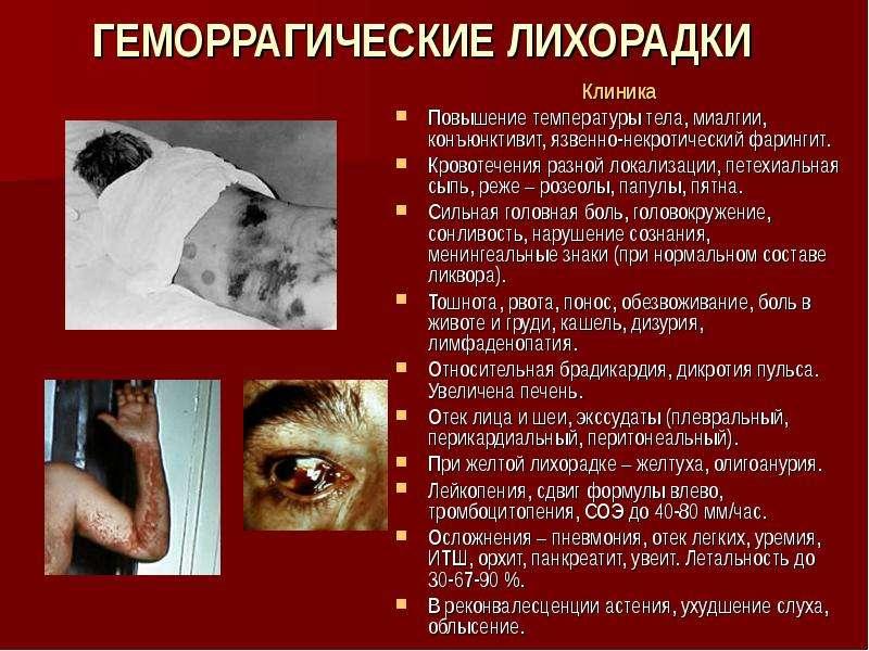 узбекистанская геморрагическая лихорадка реферат инфекция подошва