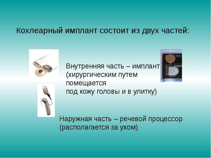 Педагогическая реабилитация детей после кохлеарной имплантации, слайд 3
