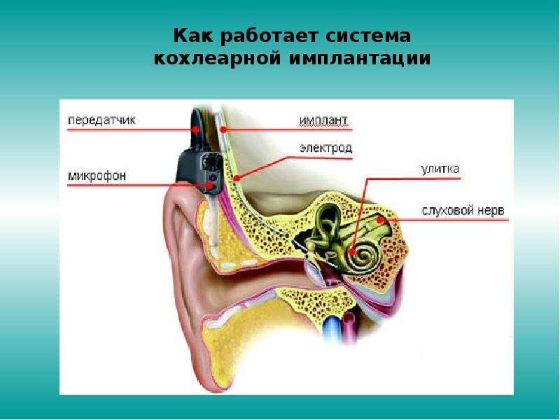Педагогическая реабилитация детей после кохлеарной имплантации, слайд 4