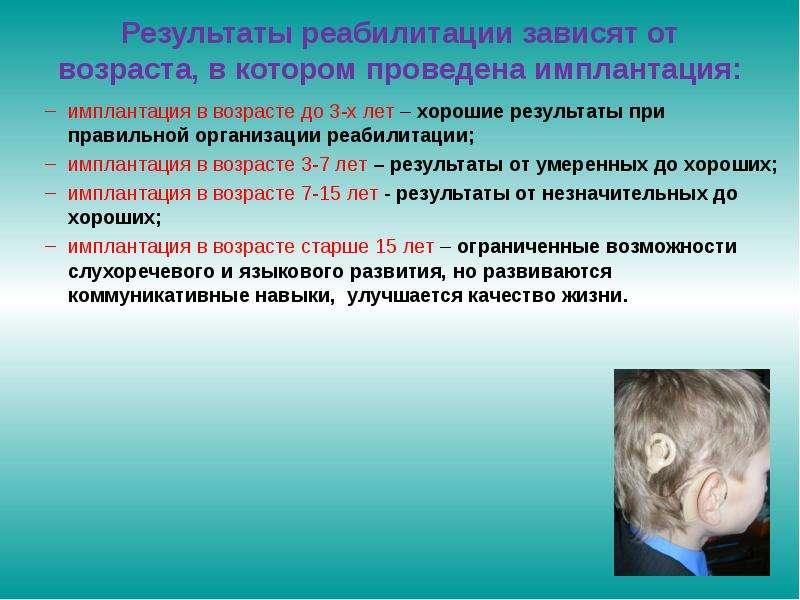 Результаты реабилитации зависят от возраста, в котором проведена имплантация: имплантация в возрасте