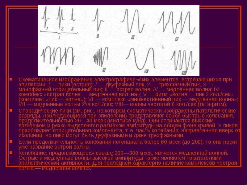 Сонотопография