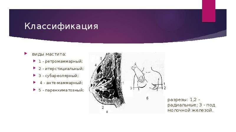 Травмы и гнойно-воспалительные заболевания мягких тканей грудной стенки - презентация, доклад, проект скачать