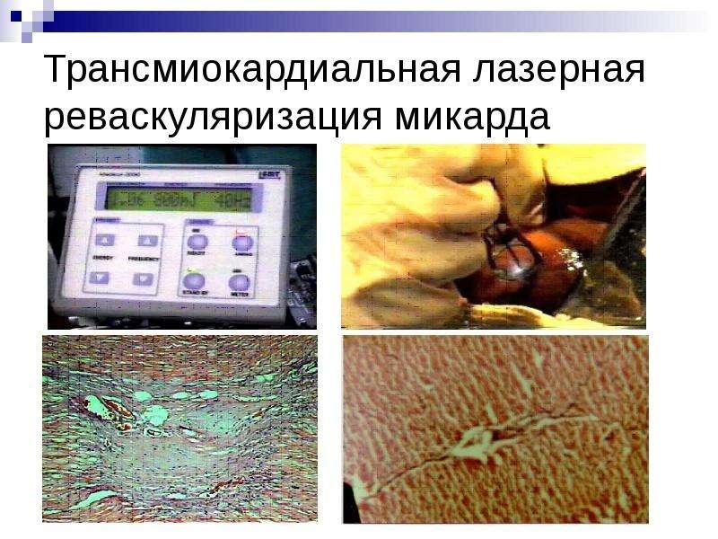 Трансмиокардиальная лазерная реваскуляризация микарда
