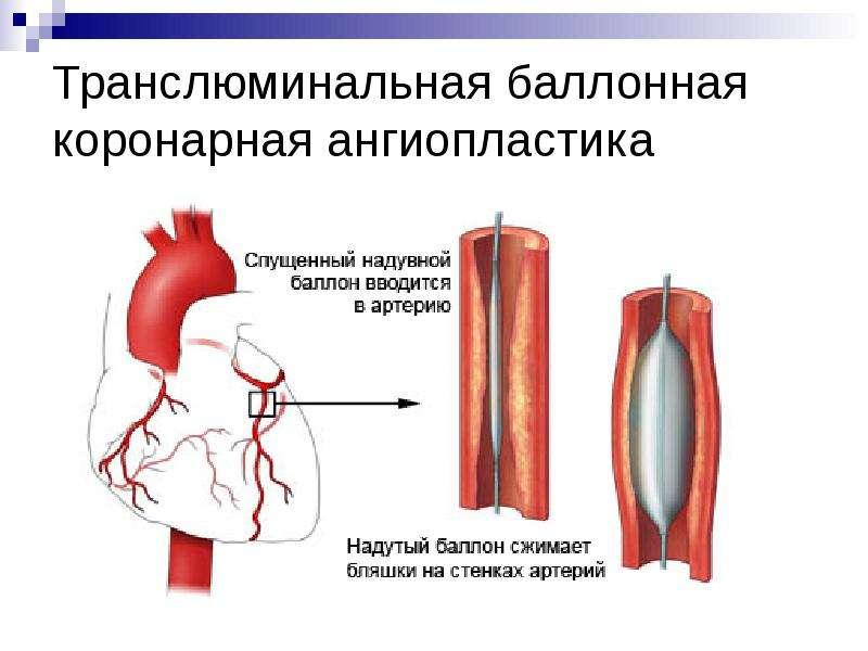 Транслюминальная баллонная коронарная ангиопластика