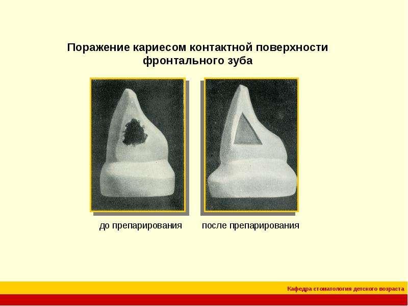 Реставрация зубов по классу по блеку