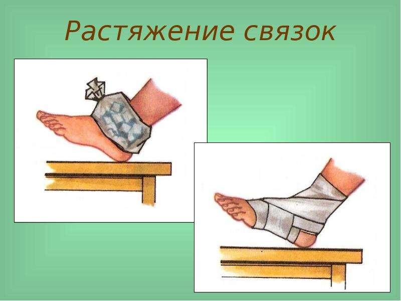 Первая мед помощь при растяжении сустава боли в мышцах суставах лимфоузлы увеличены