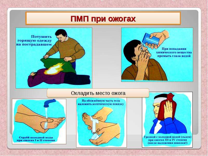 Первая помощь ребенку при ожоге кипятком в домашних условиях