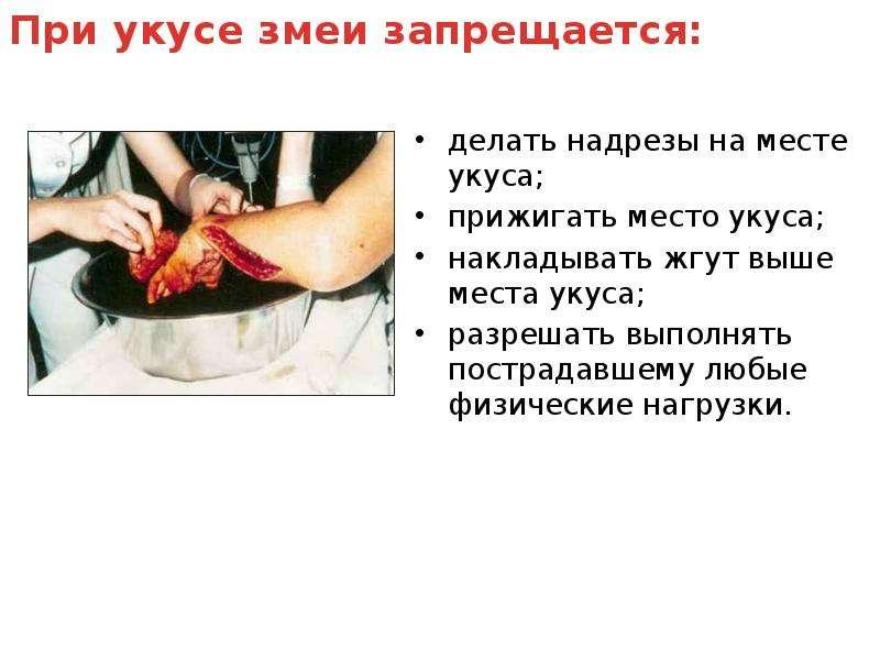 делать надрезы на месте укуса; делать надрезы на месте укуса; прижигать место укуса; накладывать жгу