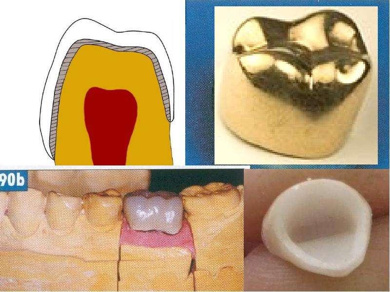 Чем обезболить зубы под коронками