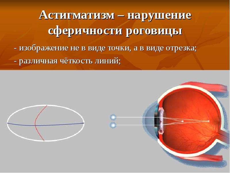 Астигматизм – нарушение сферичности роговицы - изображение не в виде точки, а в виде отрезка; - разл