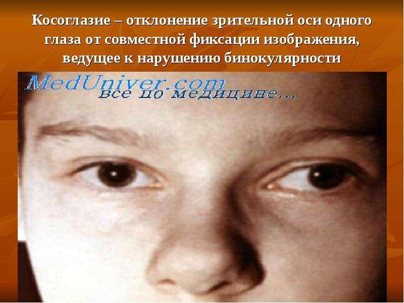 Косоглазие – отклонение зрительной оси одного глаза от совместной фиксации изображения, ведущее к на