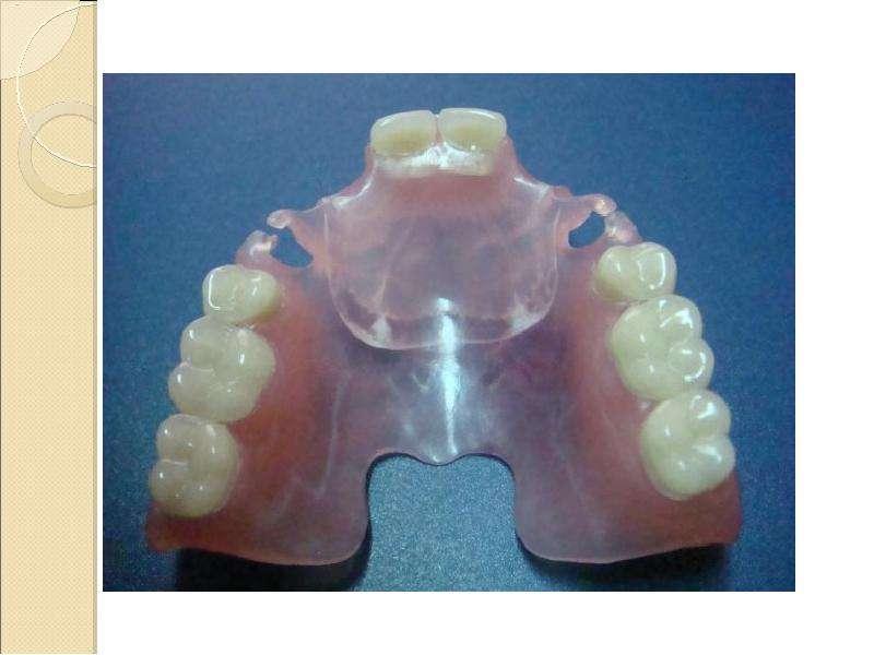 Приварка зуба на съемный протез