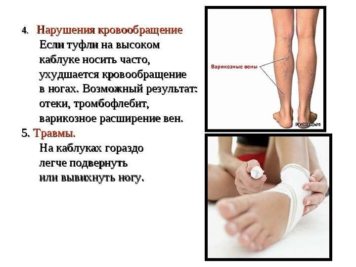 4. Нарушения кровообращение 4. Нарушения кровообращение Если туфли на высоком каблуке носить часто,