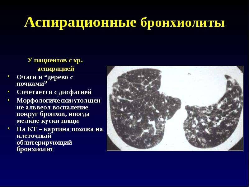 Возможности лучевой диагностики заболеваний бронхов - скачать презентацию