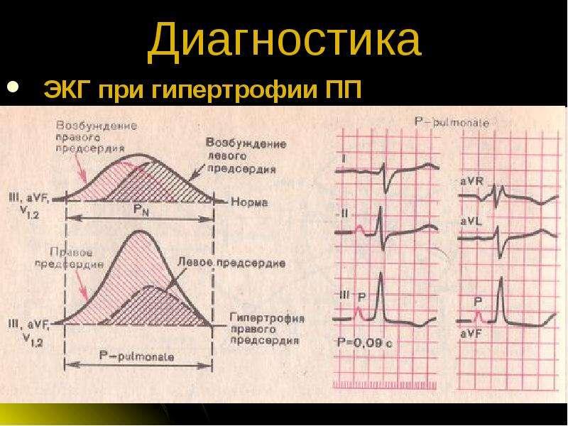 Векторный анализ отклонения электрической оси сердца влево, связанного с гипертрофией левого желудочка