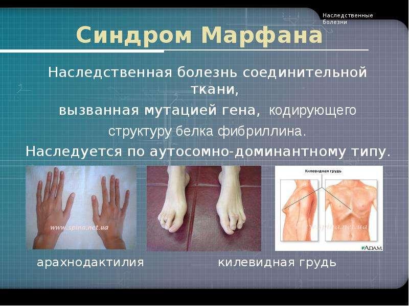 Синдром Марфана Наследственная болезнь соединительной ткани, вызванная мутацией гена, кодирующего ст