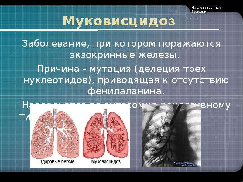 Муковисцидоз Заболевание, при котором поражаются экзокринные железы. Причина - мутация (делеция трех
