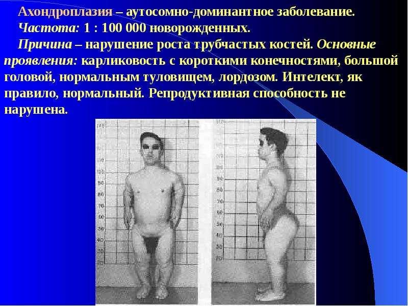 Порно фото людей с генетической структурой xxy удовольствием