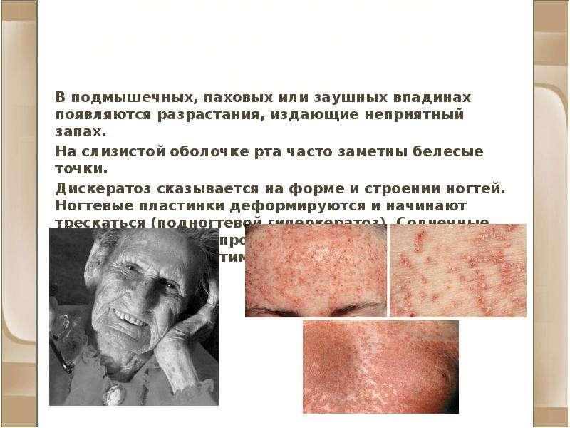 Фолликулярный дискератоз (болезнь Дарье) В подмышечных, паховых или заушных впадинах появляются разр