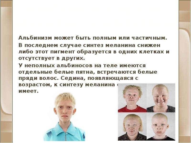 Альбинизм и другие нарушения пигментации Альбинизм может быть полным или частичным. В последнем случ