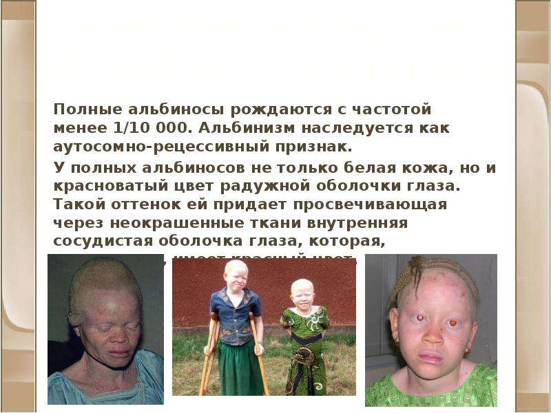 Альбинизм и другие нарушения пигментации Полные альбиносы рождаются с частотой менее 1/10 000. Альби