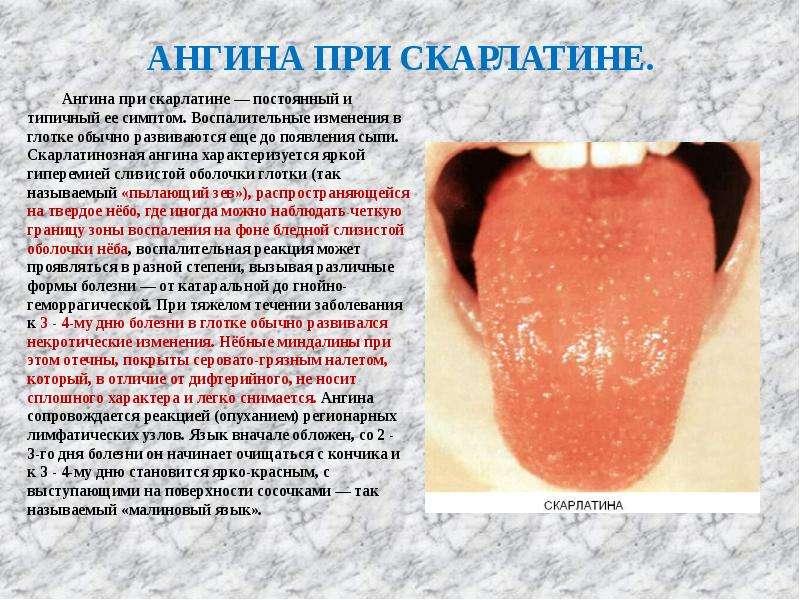 АНГИНА ПРИ СКАРЛАТИНЕ. Ангина при скарлатине — постоянный и типичный ее симптом. Воспалительные изме
