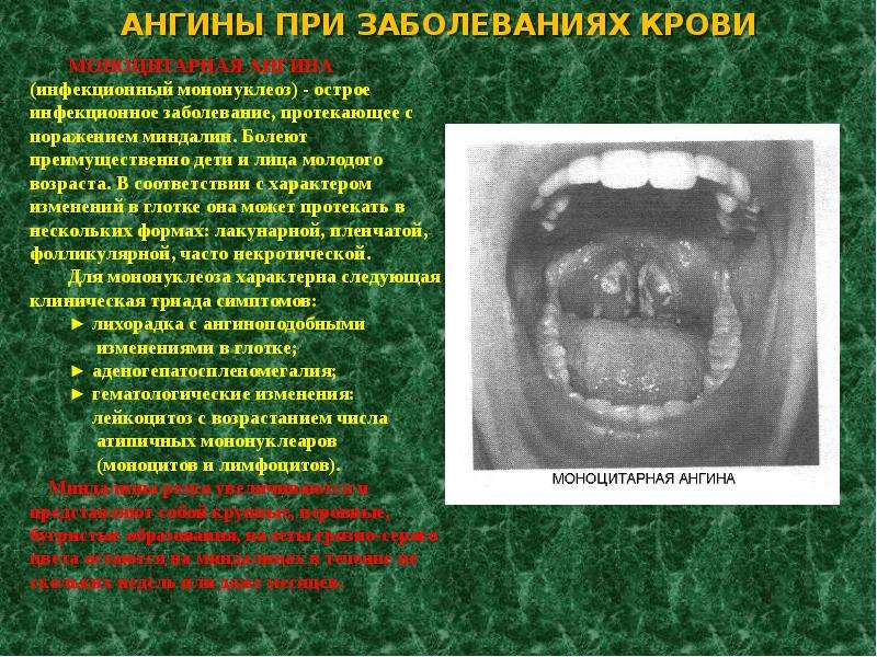 АНГИНЫ ПРИ ЗАБОЛЕВАНИЯХ КРОВИ МОНОЦИТАРНАЯ АНГИНА (инфекционный мононуклеоз) - острое инфекционное з