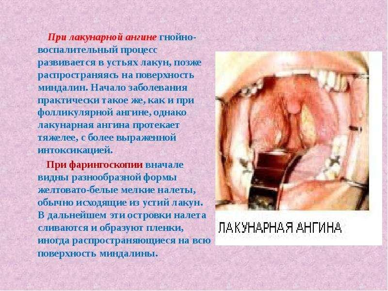 При лакунарной ангине гнойно-воспалительный процесс развивается в устьях лакун, позже распространяяс