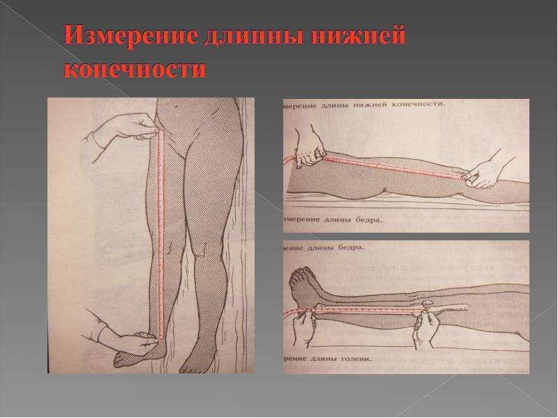 осмотр пациент ов с повреждением голеностопного сустава