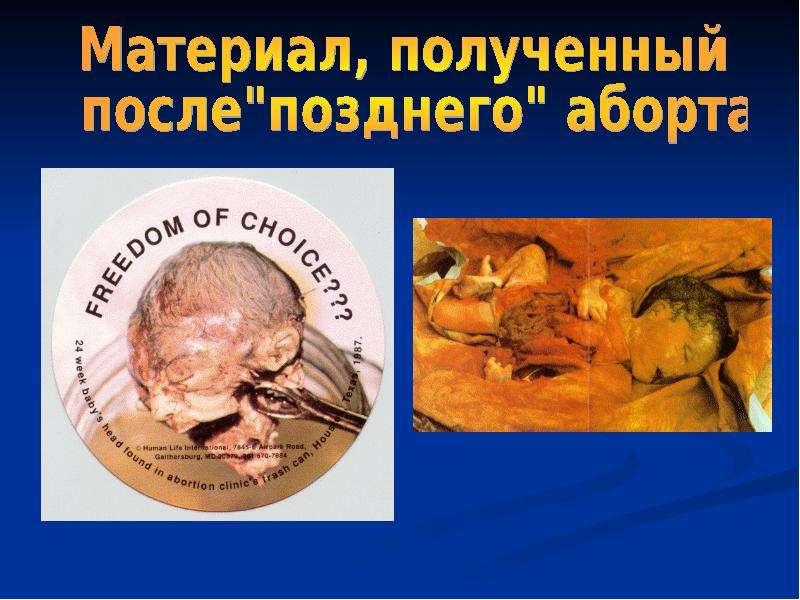 Аборт - ЖЕНСКОЕ ЗДОРОВЬЕ
