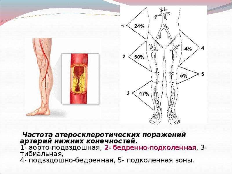 Частота атеросклеротических поражений артерий нижних конечностей. 1- аорто-подвздошная, 2- бедренно-