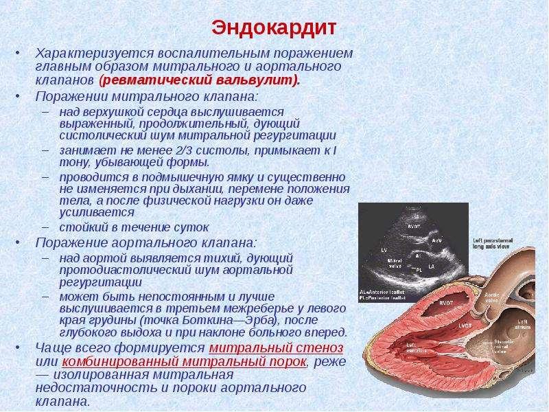 Эндокардит Характеризуется воспалительным поражением главным образом митрального и аортального клапа