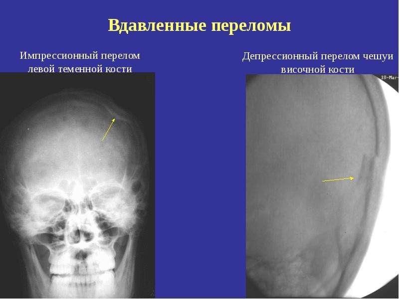 Перелом правой височной кости