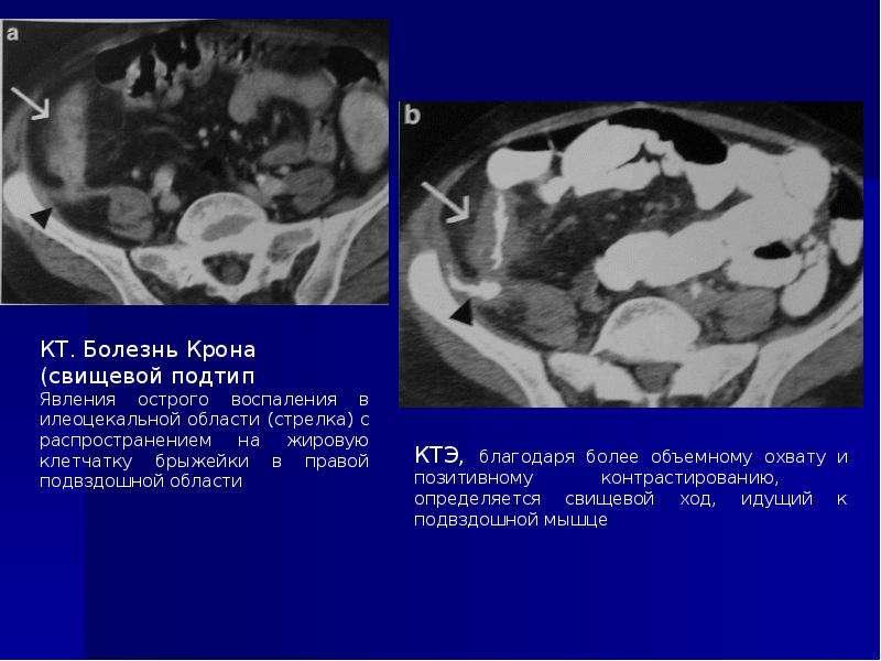 Диагностика заболеваний тонкого кишечника