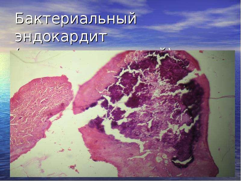 Бактериальный эндокардит отзывы пациентов