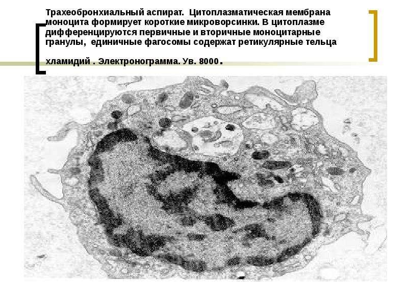 Трахеобронхиальный аспират. Цитоплазматическая мембрана моноцита формирует короткие микроворсинки. В