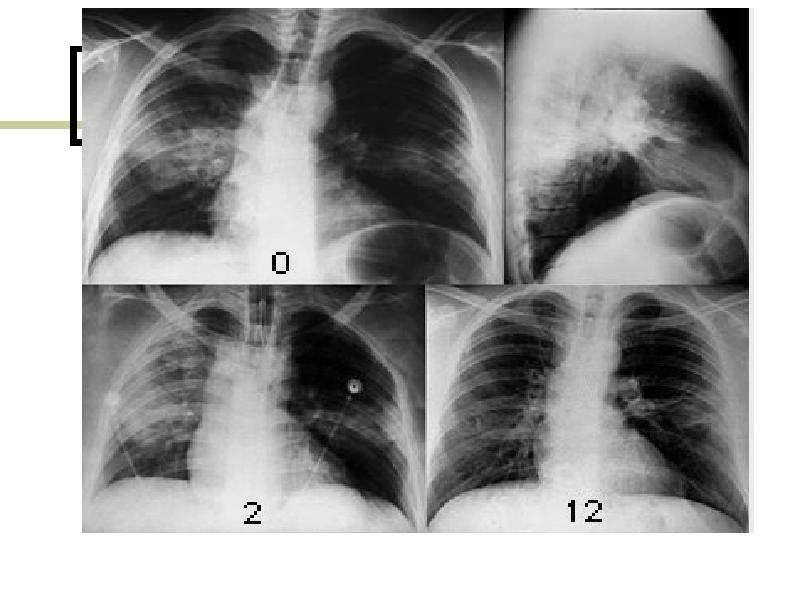 Хламидийная инфекция ЖУКОВА ЛАРИСА ИВАНОВНА, слайд 19