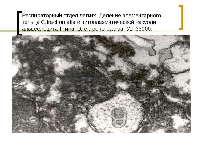 Респираторный отдел легких. Деление элементарного тельца С. trachomatis в цитоплазматической вакуоли