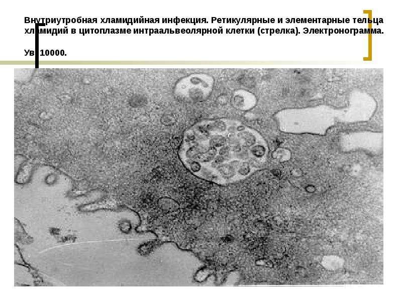 Внутриутробная хламидийная инфекция. Ретикулярные и элементарные тельца хламидий в цитоплазме интраа