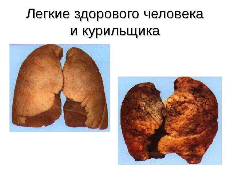 запах табака изо рта чем убрать